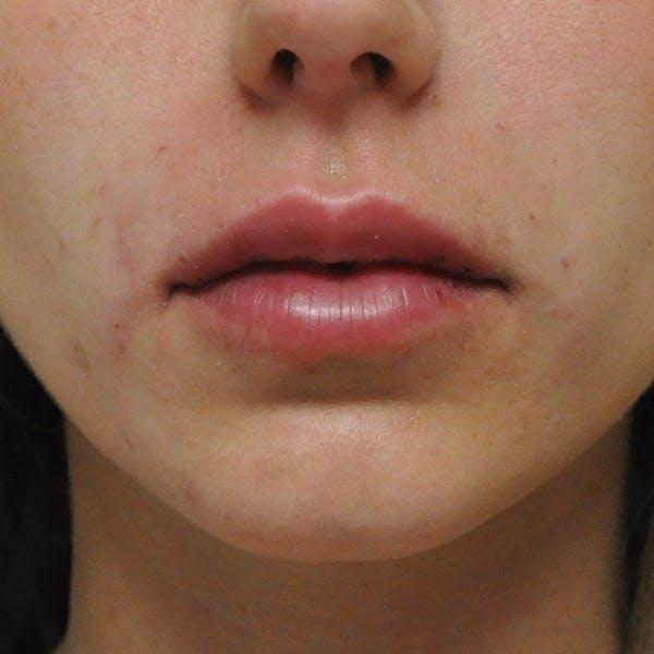 Lip Augmentation Gallery - Patient 13574765 - Image 2