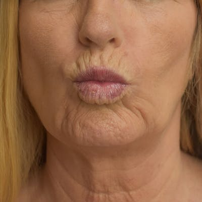 Lip Augmentation Gallery - Patient 13574766 - Image 1
