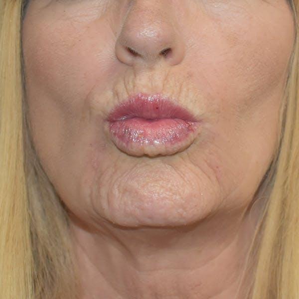 Lip Augmentation Gallery - Patient 13574766 - Image 2