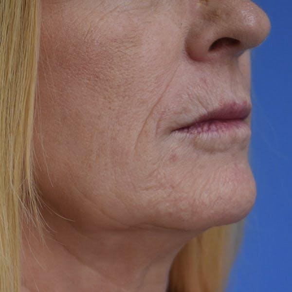 Lip Augmentation Gallery - Patient 13574766 - Image 3