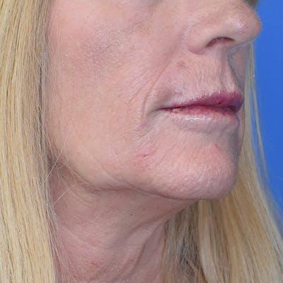 Lip Augmentation Gallery - Patient 13574766 - Image 4