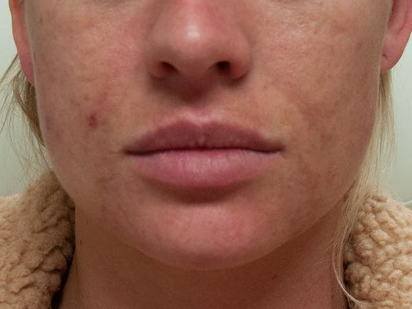 Lip Augmentation Gallery - Patient 13574767 - Image 1