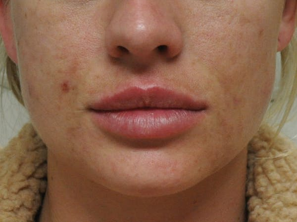 Lip Augmentation Gallery - Patient 13574767 - Image 2