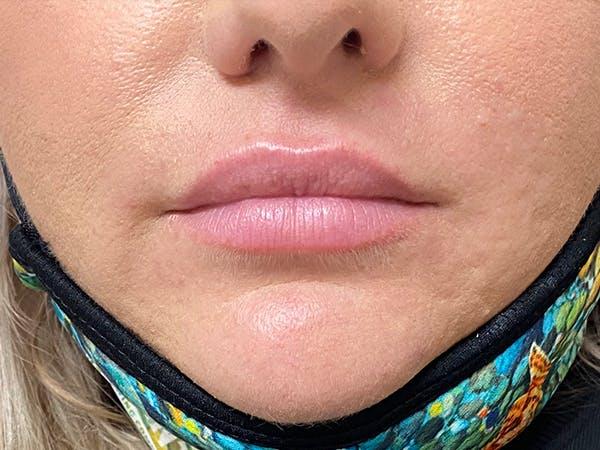 Lip Augmentation Gallery - Patient 20644492 - Image 1