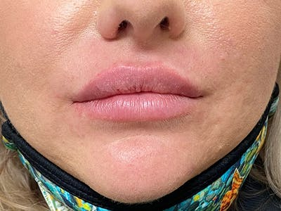 Lip Augmentation Gallery - Patient 20644492 - Image 2