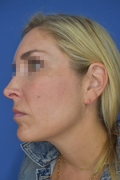 Earlobes Gallery - Patient 21023809 - Image 1