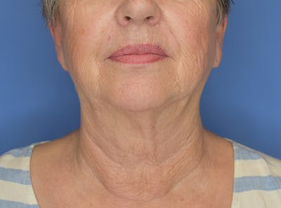 Neck Lift Gallery - Patient 21023830 - Image 1