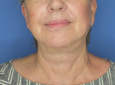 Neck Lift Gallery - Patient 21023830 - Image 2