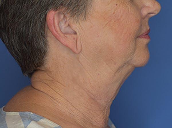 Neck Lift Gallery - Patient 21023830 - Image 3