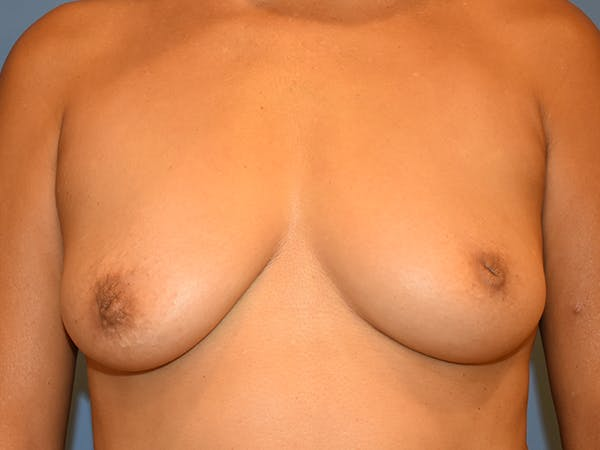 Inverted Nipple Correction Gallery - Patient 21023841 - Image 1