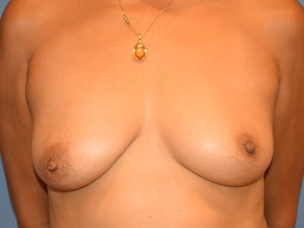 Inverted Nipple Correction Gallery - Patient 21023841 - Image 2