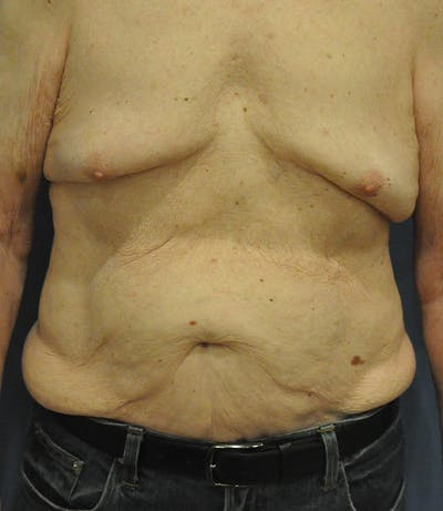 Tummy Tuck (Abdominoplasty) Gallery - Patient 21023847 - Image 1