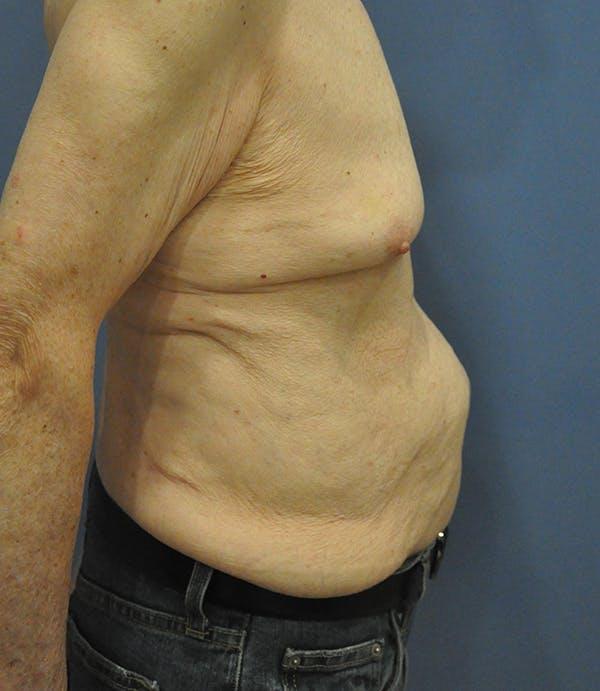Tummy Tuck (Abdominoplasty) Gallery - Patient 21023847 - Image 3