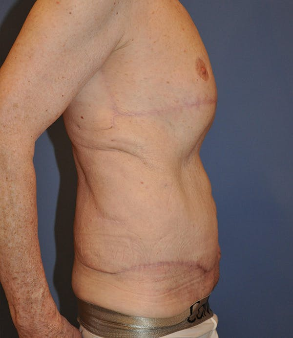 Tummy Tuck (Abdominoplasty) Gallery - Patient 21023847 - Image 4