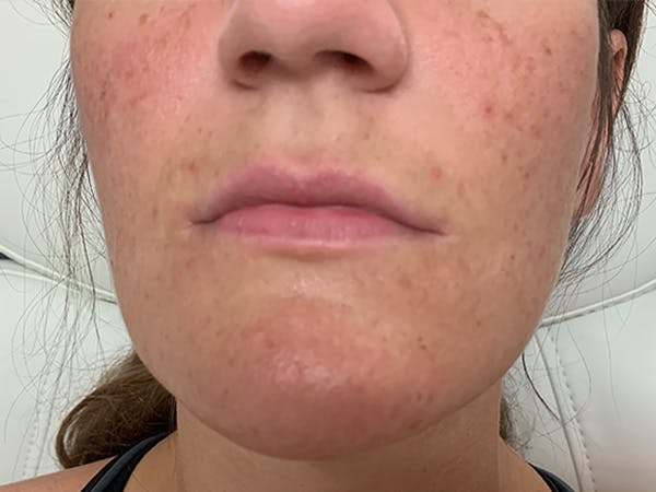 Lip Augmentation Gallery - Patient 21144012 - Image 1