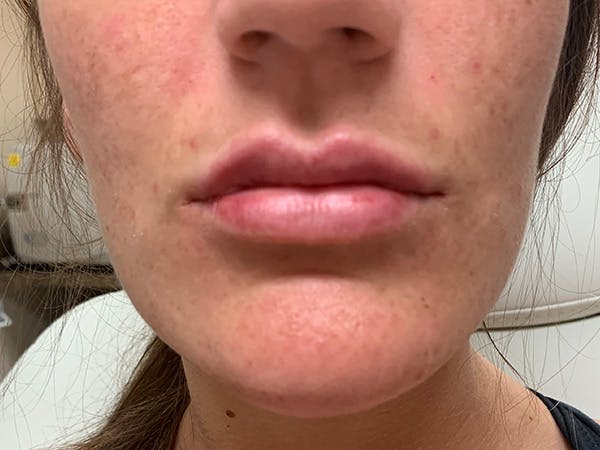 Lip Augmentation Gallery - Patient 21144012 - Image 2
