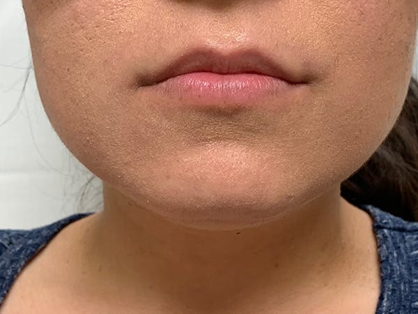 Lip Augmentation Gallery - Patient 21144050 - Image 1