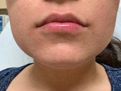 Lip Augmentation Gallery - Patient 21144050 - Image 2