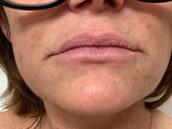 Lip Augmentation Gallery - Patient 21144063 - Image 1
