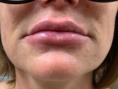 Lip Augmentation Gallery - Patient 21144063 - Image 2