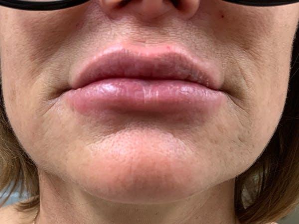 Lip Augmentation Gallery - Patient 21144063 - Image 2