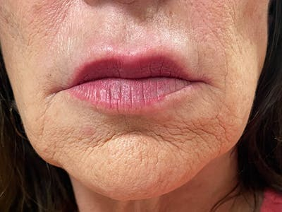 Lip Augmentation Gallery - Patient 21144234 - Image 1