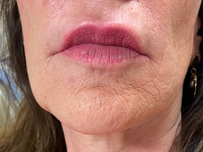 Lip Augmentation Gallery - Patient 21144234 - Image 2
