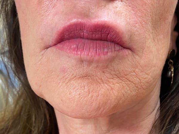 Lip Augmentation Gallery - Patient 21144234 - Image 2