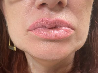 Lip Augmentation Gallery - Patient 21349556 - Image 1