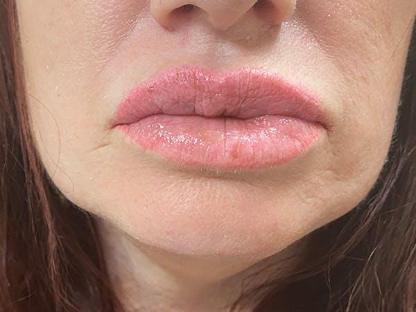 Lip Augmentation Gallery - Patient 21349556 - Image 2