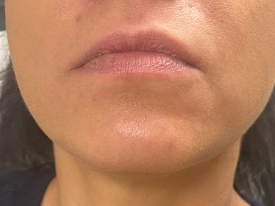 Lip Augmentation Gallery - Patient 21349587 - Image 1
