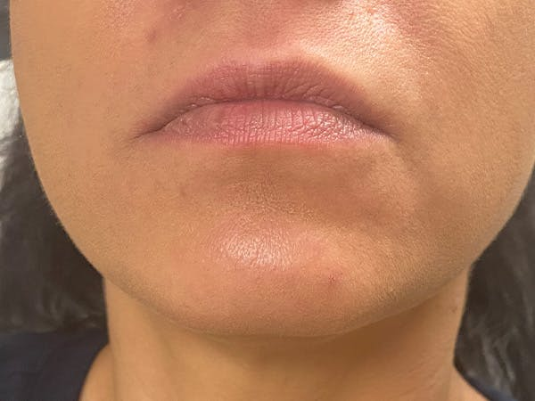 Lip Augmentation Gallery - Patient 21349587 - Image 1