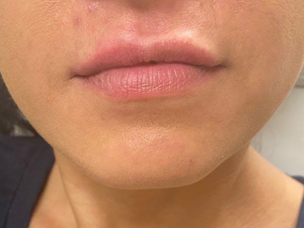 Lip Augmentation Gallery - Patient 21349587 - Image 2