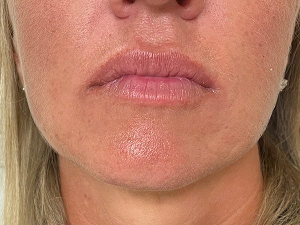 Lip Augmentation Gallery - Patient 21349720 - Image 1