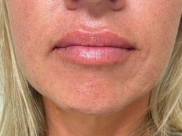 Lip Augmentation Gallery - Patient 21349720 - Image 2