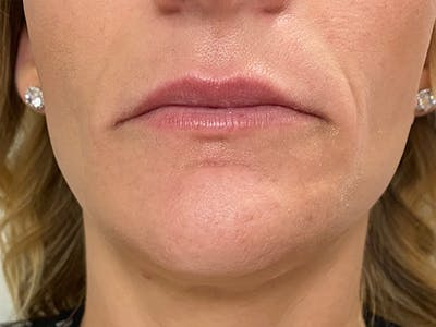 Lip Augmentation Gallery - Patient 21349824 - Image 1