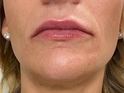 Lip Augmentation Gallery - Patient 21349824 - Image 2