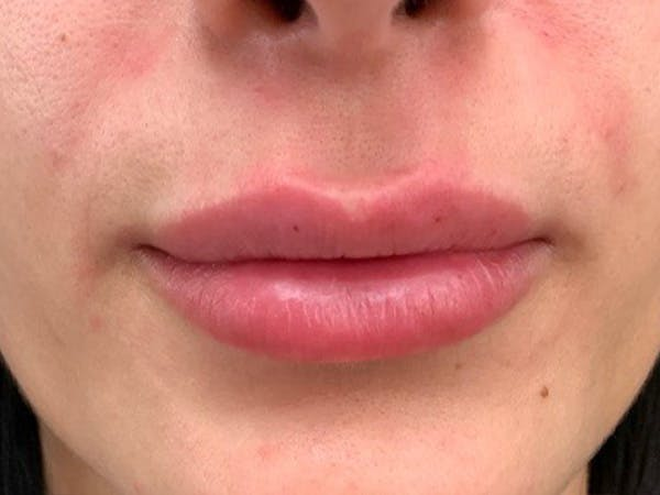 Lip Augmentation Gallery - Patient 21349870 - Image 2
