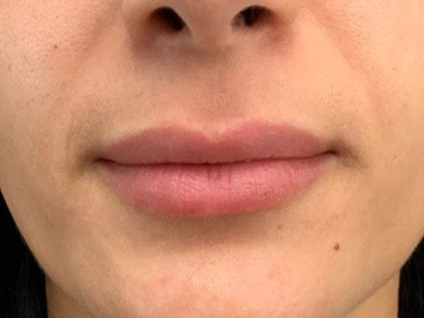 Lip Augmentation Gallery - Patient 21349870 - Image 1