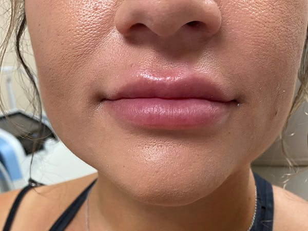 Lip Augmentation Gallery - Patient 21349903 - Image 1