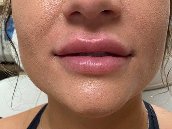 Lip Augmentation Gallery - Patient 21349903 - Image 2