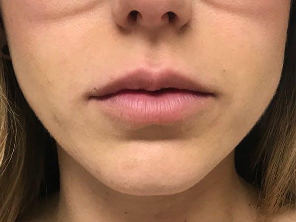 Lip Augmentation Gallery - Patient 21350048 - Image 1