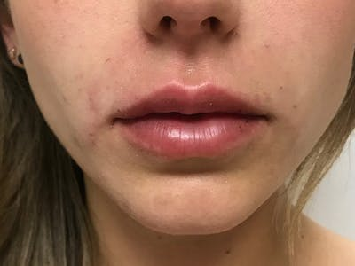 Lip Augmentation Gallery - Patient 21350048 - Image 2