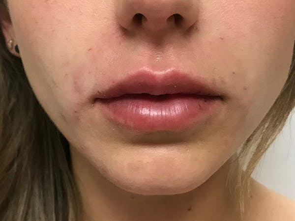 Lip Augmentation Gallery - Patient 21350048 - Image 2