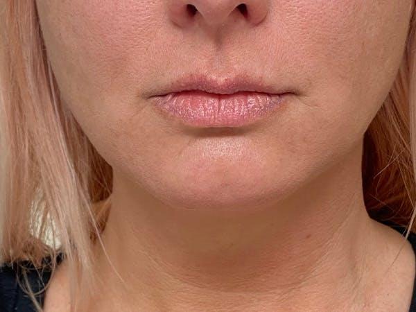 Lip Augmentation Gallery - Patient 21353116 - Image 1
