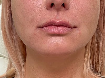 Lip Augmentation Gallery - Patient 21353116 - Image 2