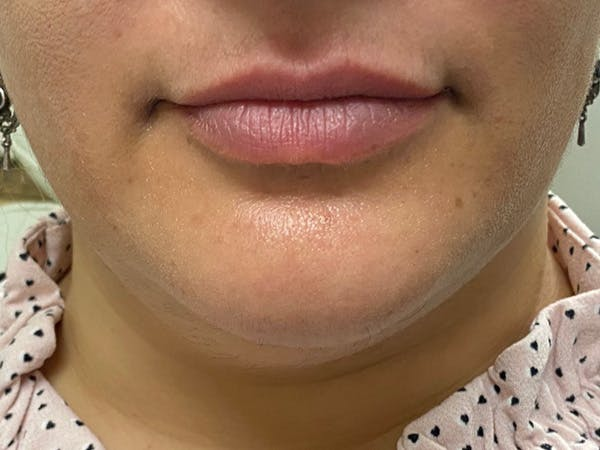 Lip Augmentation Gallery - Patient 21821119 - Image 1