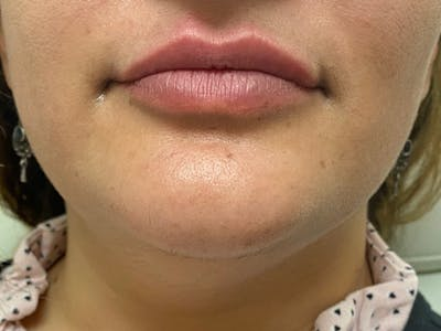 Lip Augmentation Gallery - Patient 21821119 - Image 2