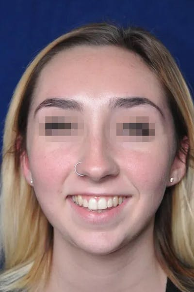 Rhinoplasty Gallery - Patient 13574719 - Image 1