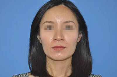 Rhinoplasty Gallery - Patient 13574721 - Image 1